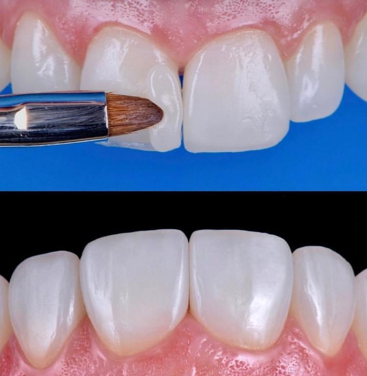 Resina Composta: O material mais versátil da Odontologia