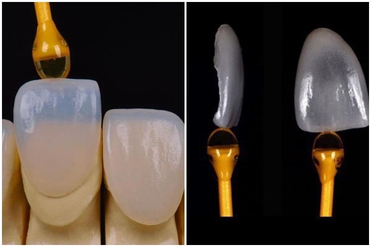 Laminados Cerâmicos, uma grande evolução no tratamento estético odontológico